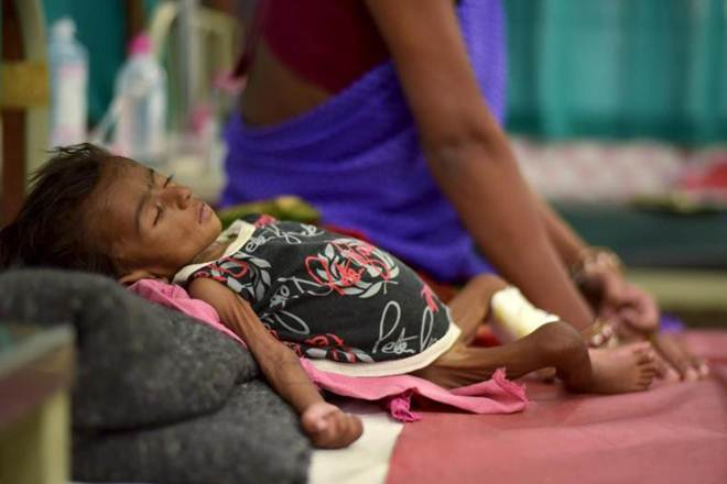 India, Mexico, China, South Africa, Brazil, malnutrition