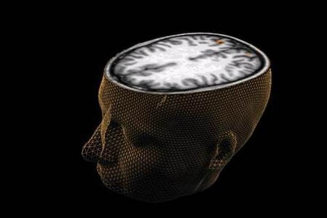 Scientists,psychiatric disorders,neurological disorder,MRI scans