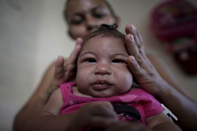 Zika virus, miscarriage, stillbirths, pregnancy, zika infections, research centers, california, davis, symptoms, pathological lesions, brain abnormality